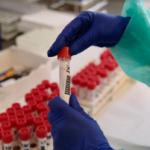 coronavirus bollettino Calabria
